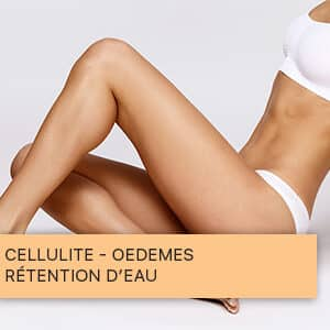 Cellulite - Œdèmes - rétention d'eau